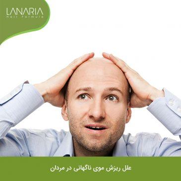 ریزش موی ناگهانی در مردان