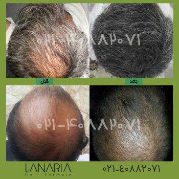 lanaria- پکیج رشد مو لاناریا