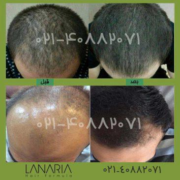 lanaria- محلول رشد مو دکتر نوروزیان