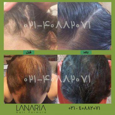 تونیک رویش مو لاناریا- lanaria