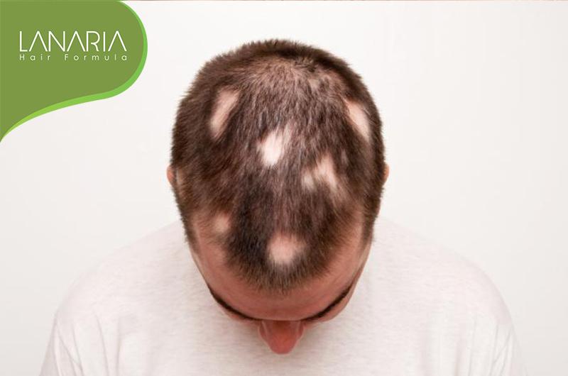 ریزش موی سکه ای- lanaria - لاناریا - دکتر نوروزیان