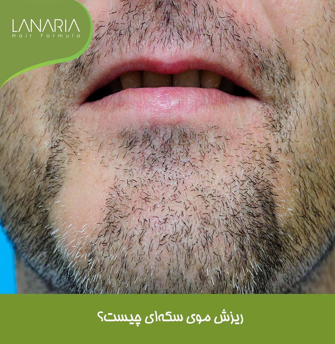 ریزش موی سکه ای- درمان ریزش موی سکه ای لاناریا- دکتر نوروزیان