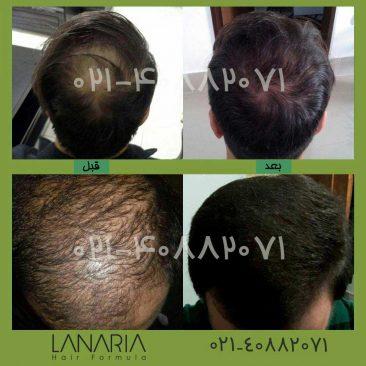 پکیج رویش مجدد مو لاناریا - lanaria
