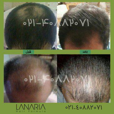 محلول جلوگیری از ریزش مو دکتر نوروزیان - lanaria