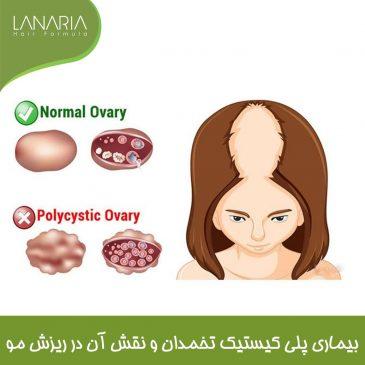 بیماری پلی کیستیک تخمدان و نقش آن در ریزش مو: