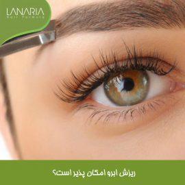 ریزش ابرو-لاناریا- lanaria - دکتر نوروزیان